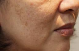 【途方に暮れるほどの年齢肌がついに悩み解消】だるんだるんのフェイスラインが皮膚科医の最新の施術で若返りに成功・・・!?
